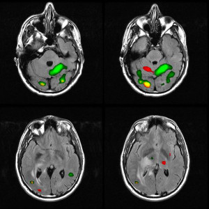 Functional MRI 1 - Glioblastoma Multiforme - brain cancer